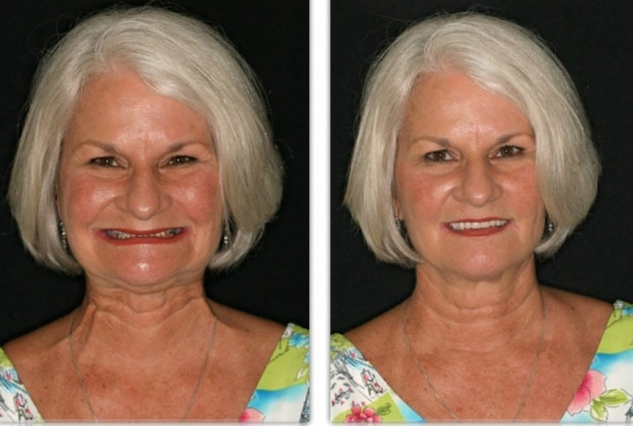 FOY® Dentures | Before and After Photos