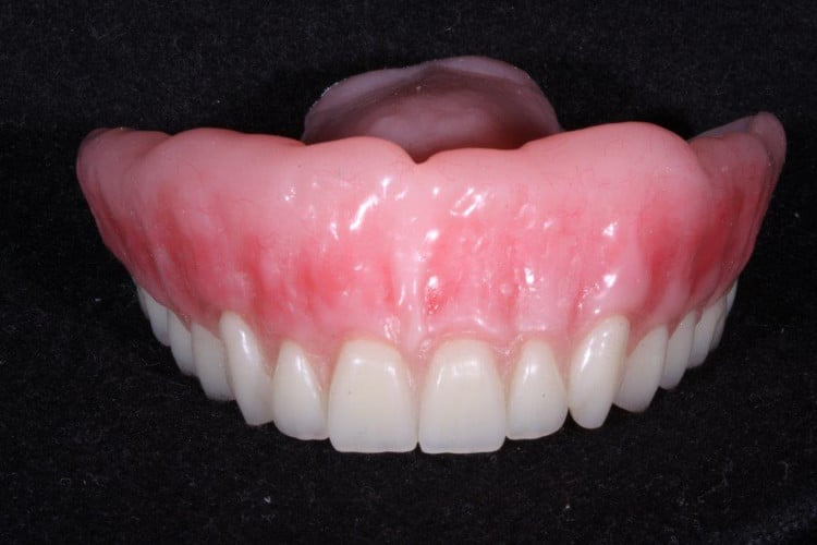 DFOY dentures that don't look fake