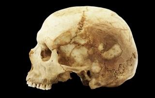 A human skull
