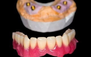 Bottom set of dentures
