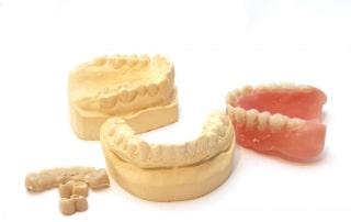 Denture moldings next to final result dentures