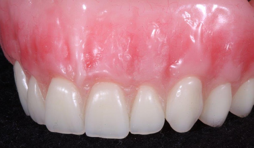 Denture close up