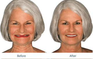 Patient smile before and after FOY ® Dentures enhanced their smile, giving her a more youthful appearance