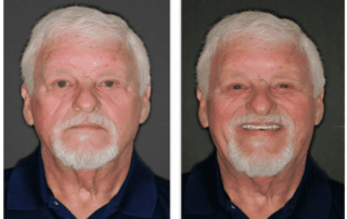 Patient smile before and after FOY dentures