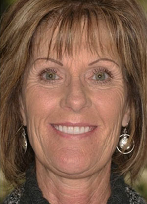 Patient's full smile after FOY® Dentures