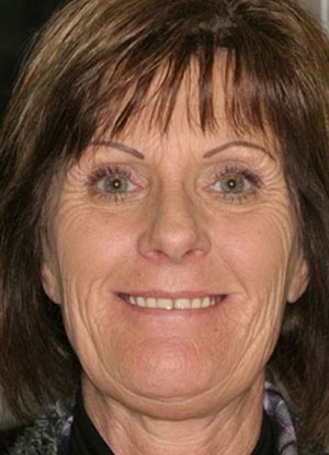 Patient's smile before FOY® Dentures