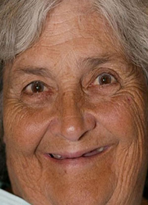 Patient smile with missing teeth before FOY® Dentures