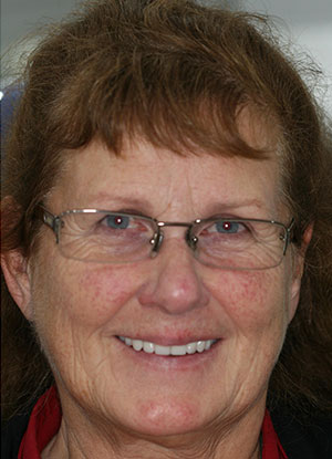 Patients straight smile after FOY® Denture