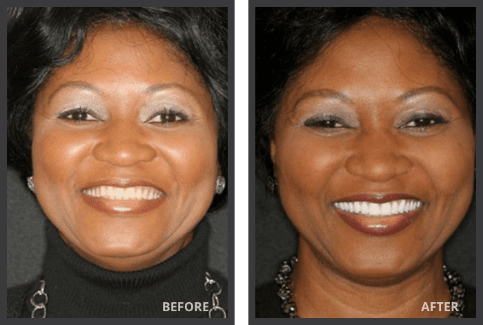 female patient before and after FOY dentures