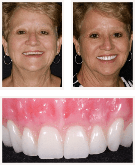 before and after image of a woman with FOY Dentures