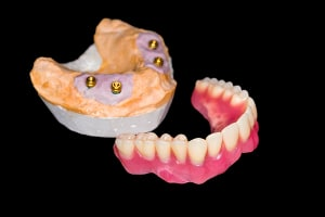dental mold with dentures and dental implants